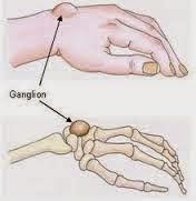 Pengobatan Alami Kista Ganglion