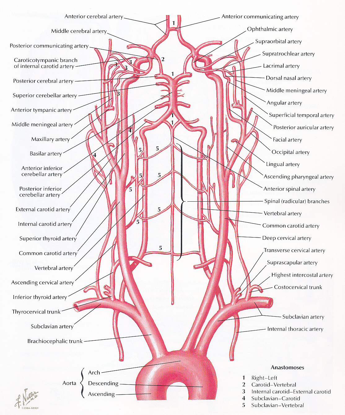 Pedi cardiology: Subclavian Steal - Mechansim