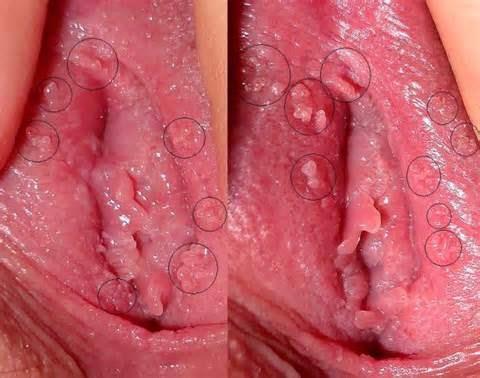 Fotos de herpes en la vagina