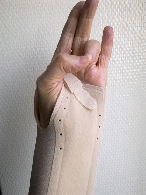 Exercises For A Hand In Plaster Cast Or Wrist Support
