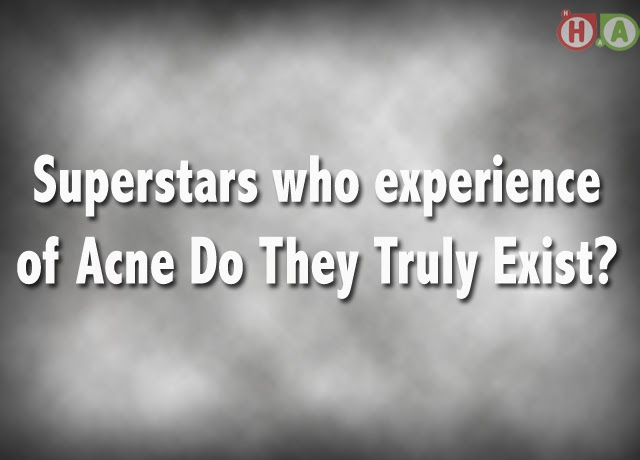 Superstars who experience of Acne