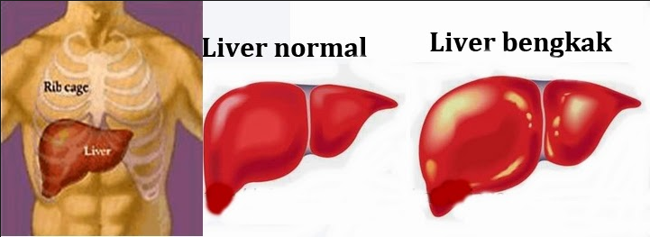 http://obeyherbal.blogspot.com/2015/09/cara-utama-mencegah-penyakit-lever.html