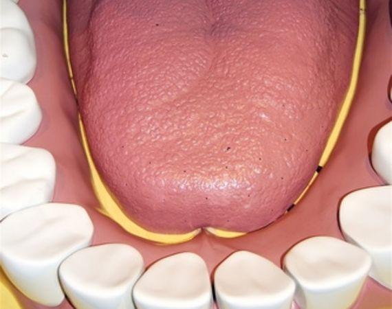 Quelles sont les causes des cloques de sang dans la bouche
