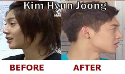 Kim Hyun Joong before and after plastic surgery