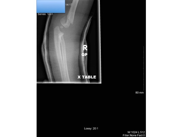 Pediatric supracondylar humerus fracture.-4.bp.blogspot.com