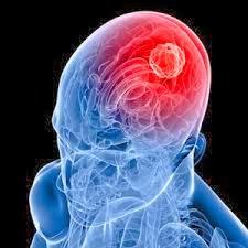 Cara Menyembuhkan Tumor Otak