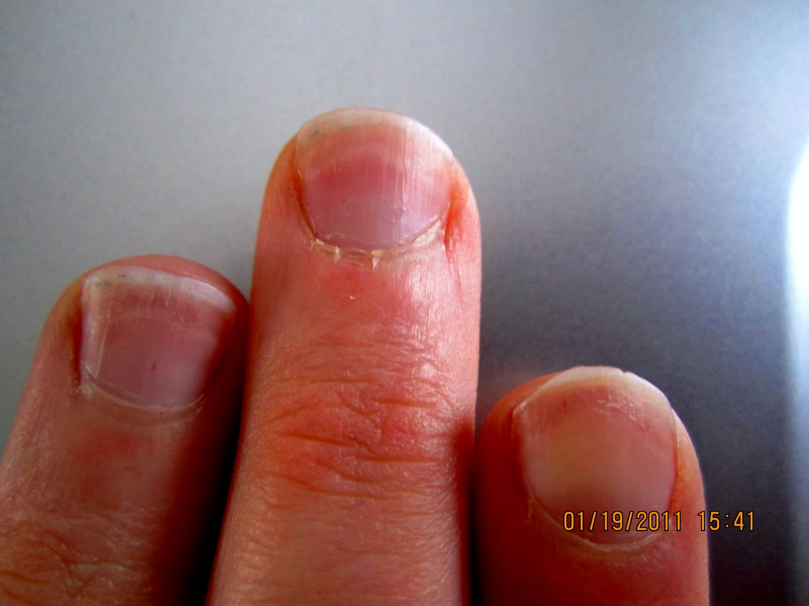 Finger Nail Capillary Time Line | Who Needs Doctors