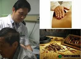 Pengobatan Kanker Ala Barat dan Timur