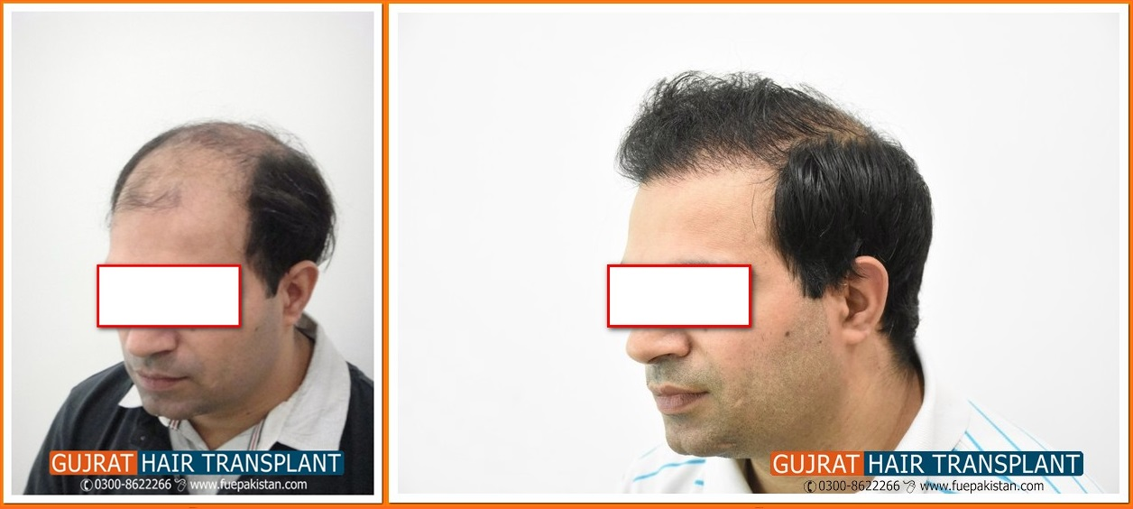 Celebrity hair transplant pics pakistan