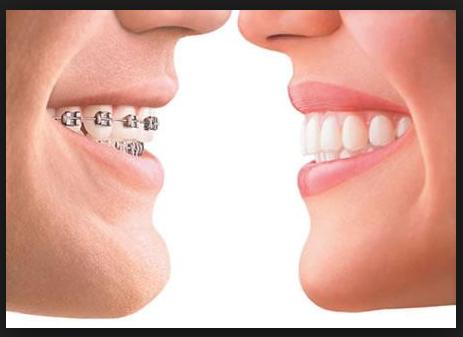 Mesa AZ Orthodontist White Spot Prevention with Dental Braces