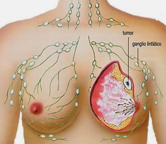 Gejala Kanker Payudara, Penyebab Kanker Payudara, waspada kanker payudara
