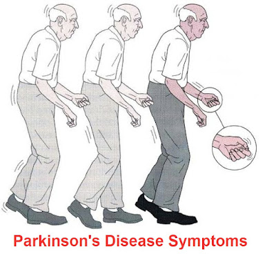 Parkinson's Disease: Signs And Symptoms, Diagnosis, Treatment And Prevention