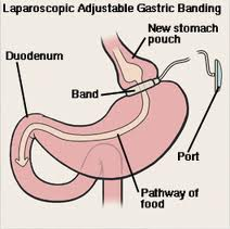 Gastric Bypass Surgery and Gallstones