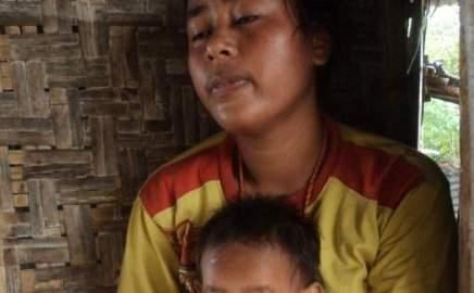 Kurang Gizi dan Obesitas, Dampak Minimnya Literasi Gizi di Indonesia