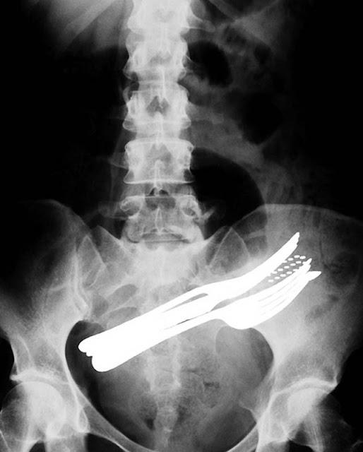 Radiografías raras