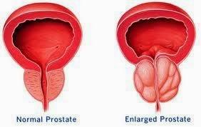 masalah prostat lelaki