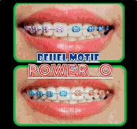 behel-lepas-pasang-motif-power-o