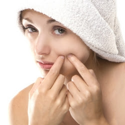 How To Get Rid Of Pimple Scars Using Natural Methods