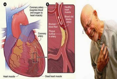 Cara Cepat Menyembuhkan Penyakit Jantung Koroner