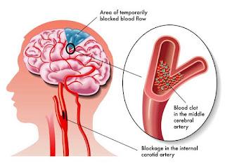 Gejala dan Penyebabnya Penyakit Stroke