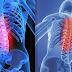 Saiba mais sobre a lesão na Medula Espinhal