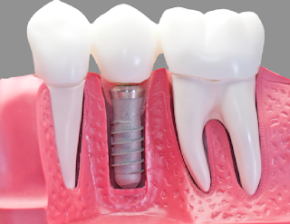 Are Dental Implants The Right Solution For You