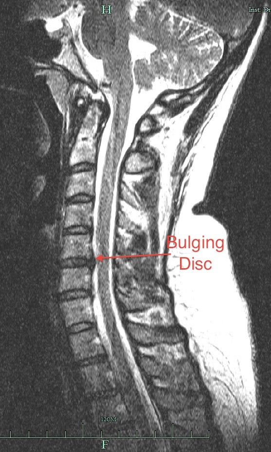 Bulging Disc C5 C6 http://fatgirlvsworld.blogspot.com/2011/12/bad-news-vs-worse-news.html