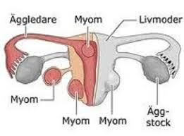 Obat Penyakit Miom denga Herbal Tanpa Operasi