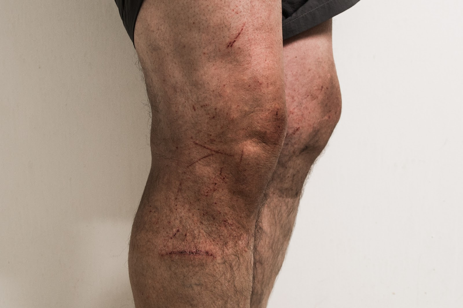 cuts on legs from hiking