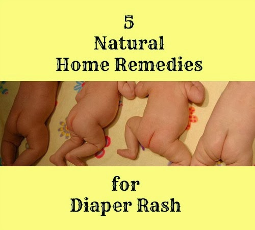 5 Natural Home Remedies for Diaper Rash