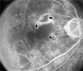 Figura 4.  Maculopatía Isquémica Diabética (Angiografía       Fluoresceínica)