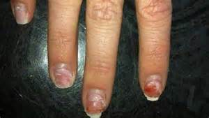 When Designing A Nail Enhancement Product My Premiere Goal Is To Make The Weaker Than Natural Prevent Serious Plate Damage Mma