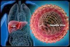 Cara Pengobatan Hepatitis B Secara Ampuh
