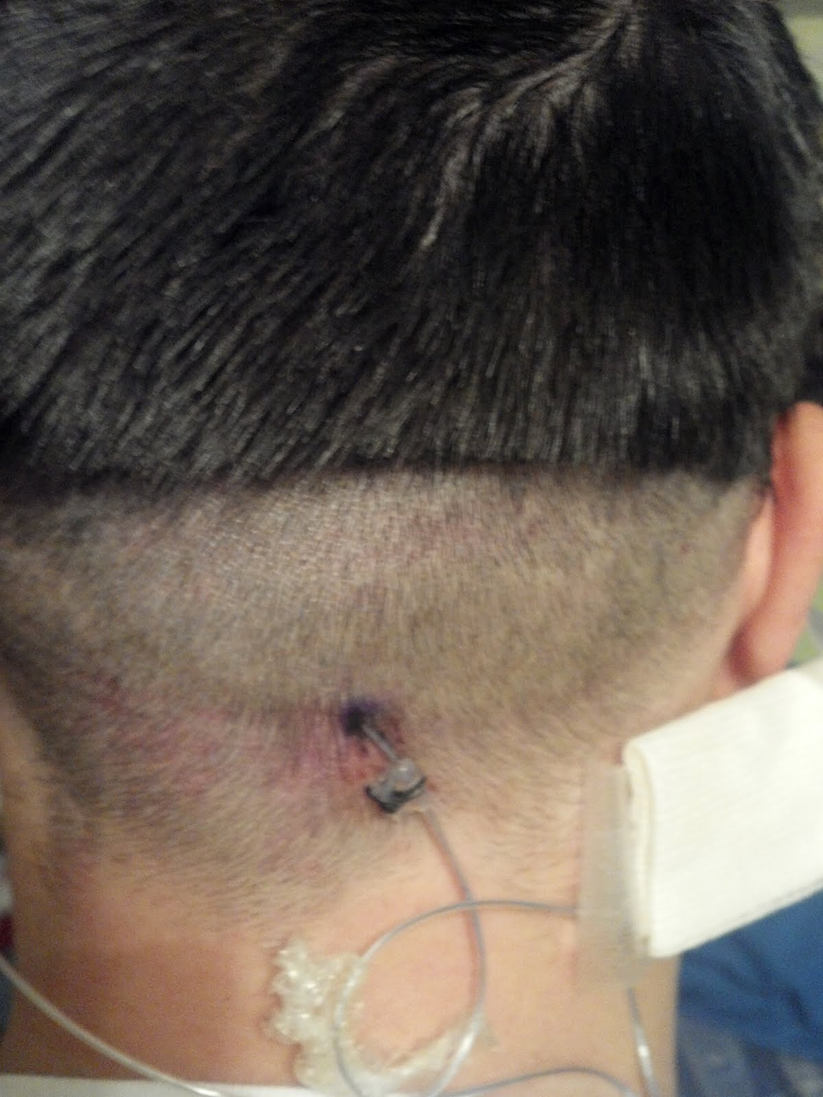Back Nerve Stimulator And Had a Nerve Stimulator