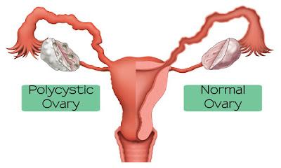 Polycystic Ovarian Diseas, Karuppai noy