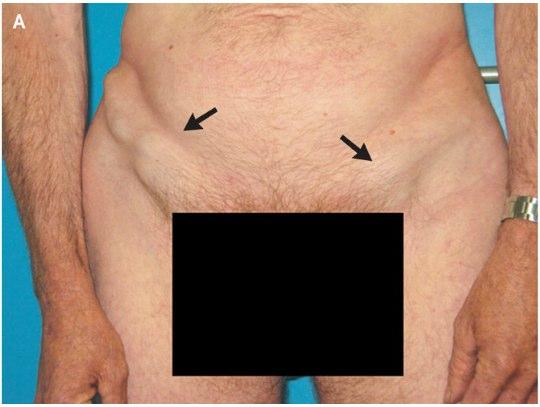 увеличение паховых лимфоузлов при сифилисе
