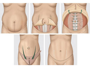 cost of tummy tuck in India