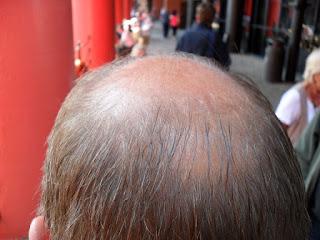 Mr D9's Bald Spot!