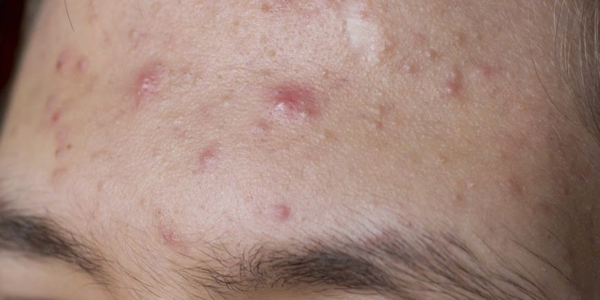 post steroid acne treatment