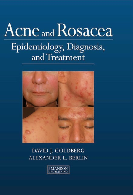 Acne and Rosacea: Epidemiology, Diagnosis and Treatment