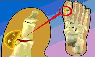 La osteocondrosis del vídeo a sheynom la osteocondrosis del ejercicio del vídeo