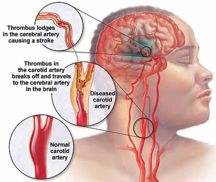 Waspadai Gejala umum Kesehatan Seperti Sakit Kepala