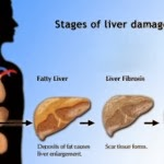 Liver Healthy Tips - Knowing 4 Stage Liver Cirrhosis