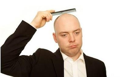 bald_man -  طرق لمحاربة الصلع