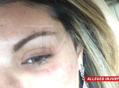 Una mujer fue golpeada en la fiesta de Chris Brown