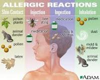 Alergi Nikel