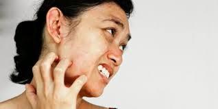 obat alergi gatal
