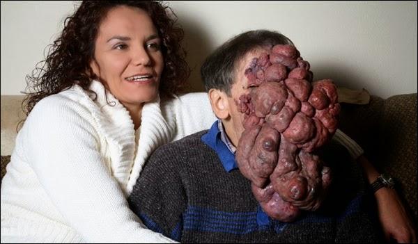 Tumor Ganas