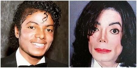 michael-jackson-plastic-surgery-before-a