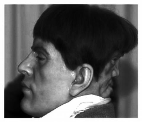 Photo from: http://www.thehumanmarvels.com/from-the-archives-edward-mordake-poor-edward/,